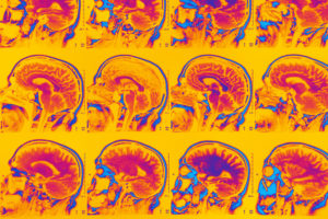 International Brain Imaging Contest Advances Mental Illness Research